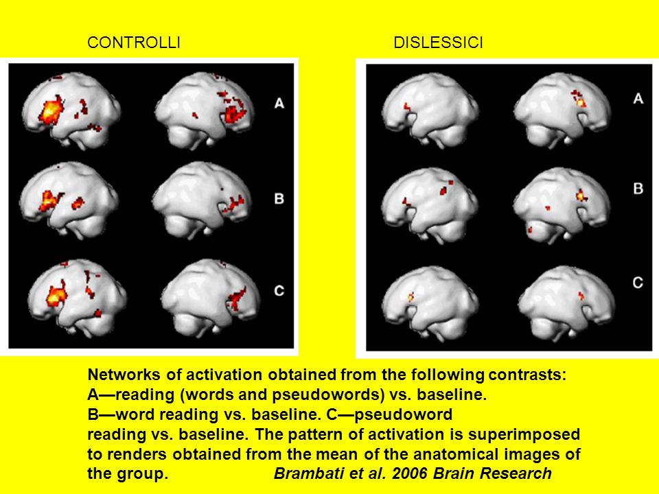 Networks of activation obtained from the following contrasts: A—reading (words and pseudowords) vs.
