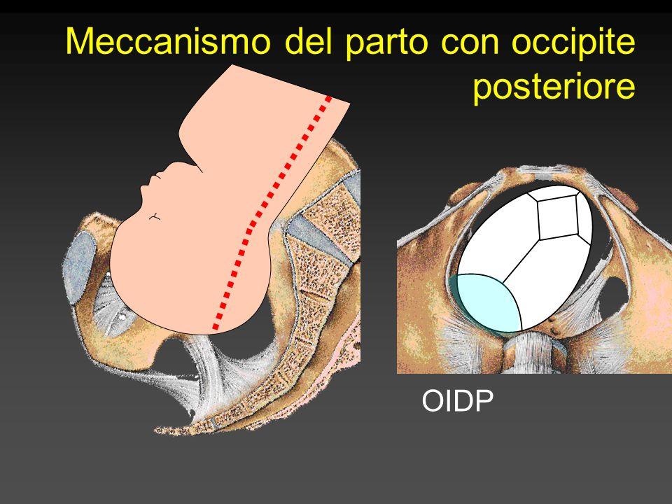 Meccanismo del parto con occipite posteriore OIDP