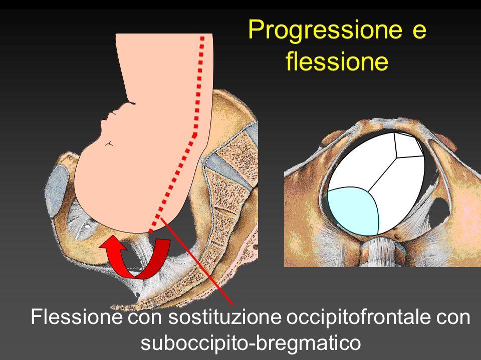 Flessione con sostituzione occipitofrontale con suboccipito-bregmatico Progressione e flessione