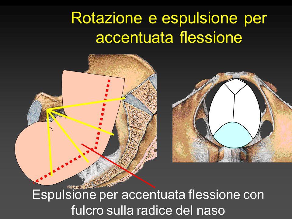 Rotazione e espulsione per accentuata flessione Espulsione per accentuata flessione con fulcro sulla radice del naso