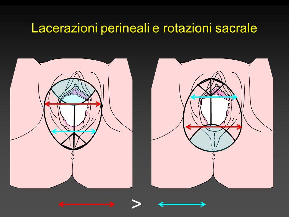 > Lacerazioni perineali e rotazioni sacrale
