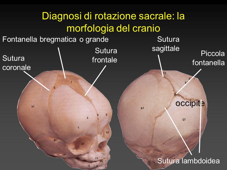 Fontanella bregmatica o grande Sutura frontale Sutura coronale Sutura sagittale Sutura lambdoidea Piccola fontanella occipite Diagnosi di rotazione sacrale: la morfologia del cranio