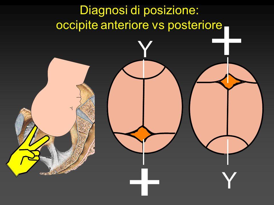 Diagnosi di posizione: occipite anteriore vs posteriore Y Y