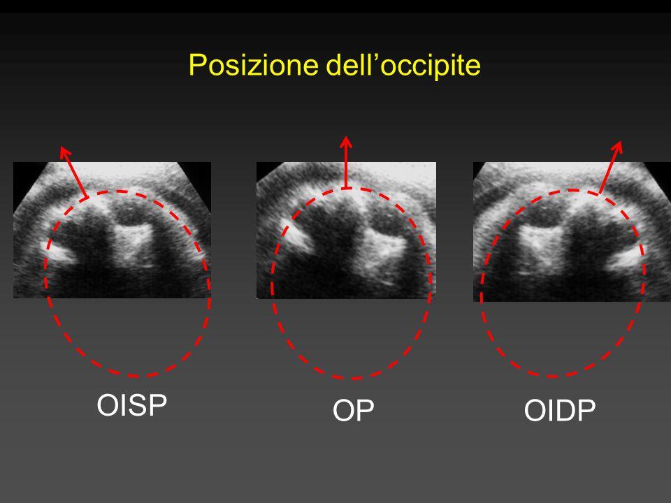 Posizione dell'occipite OISP OIDP OP