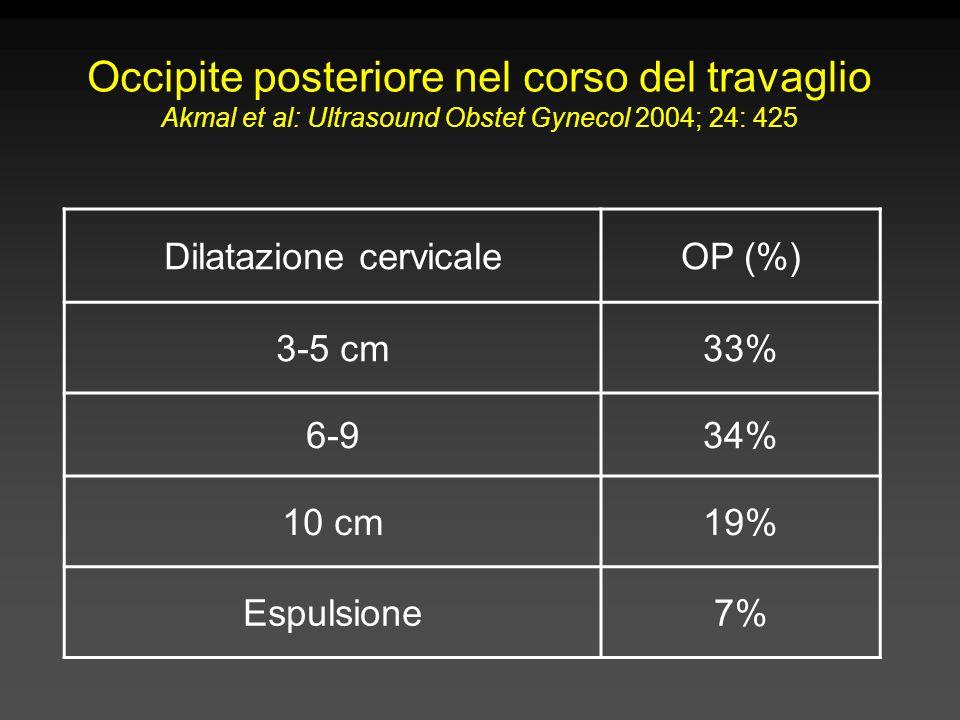 Occipite posteriore nel corso del travaglio Akmal et al: Ultrasound Obstet Gynecol 2004; 24: 425 Dilatazione cervicaleOP (%) 3-5 cm33% 6-934% 10 cm19% Espulsione7%