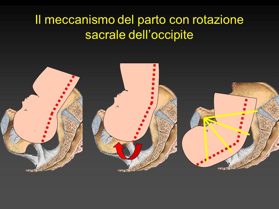 Il meccanismo del parto con rotazione sacrale dell'occipite