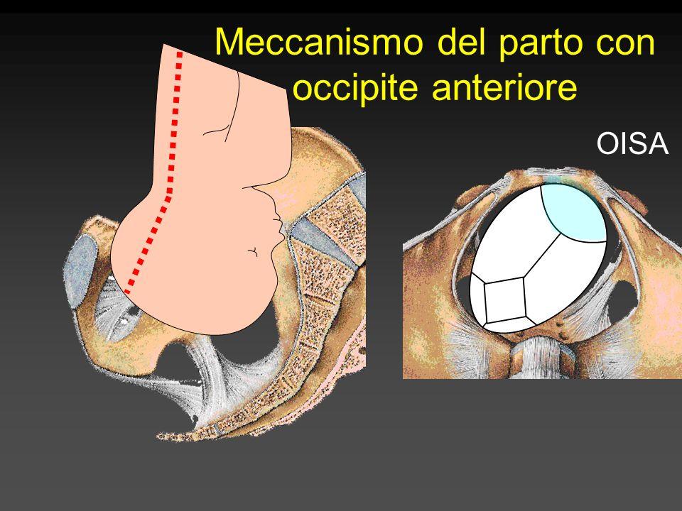 Meccanismo del parto con occipite anteriore OISA