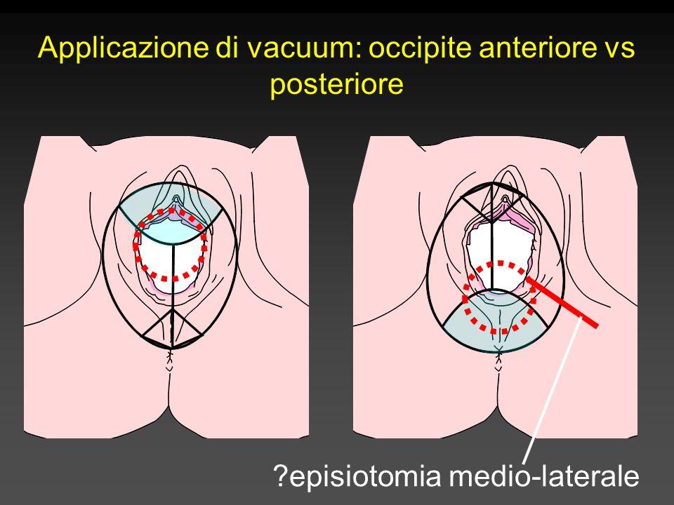 Applicazione di vacuum: occipite anteriore vs posteriore ?episiotomia medio-laterale