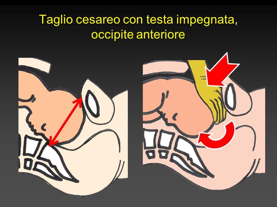 Taglio cesareo con testa impegnata, occipite anteriore