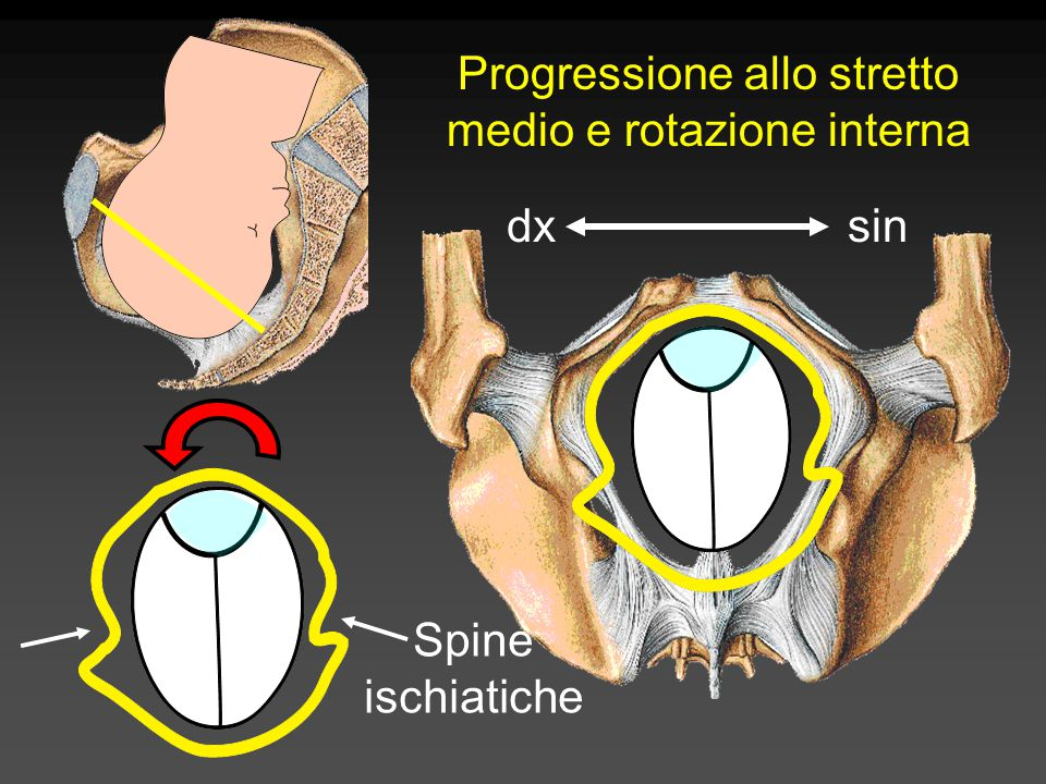 Progressione allo stretto medio e rotazione interna dxsin Spine ischiatiche