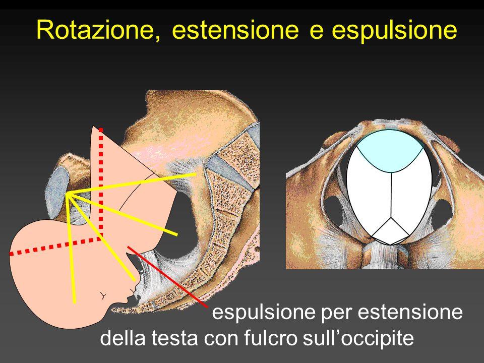 Rotazione, estensione e espulsione espulsione per estensione della testa con fulcro sull'occipite