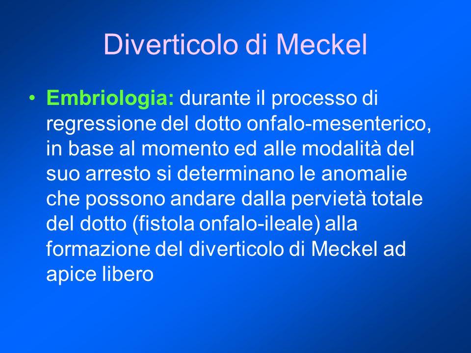 Diverticolo di Meckel Embriologia: durante il processo di regressione del dotto onfalo-mesenterico, in base al momento ed alle modalità del suo arresto si determinano le anomalie che possono andare dalla pervietà totale del dotto (fistola onfalo-ileale) alla formazione del diverticolo di Meckel ad apice libero