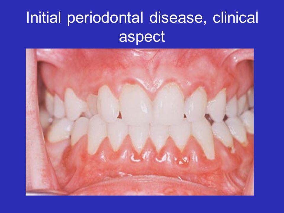 Initial periodontal disease, clinical aspect