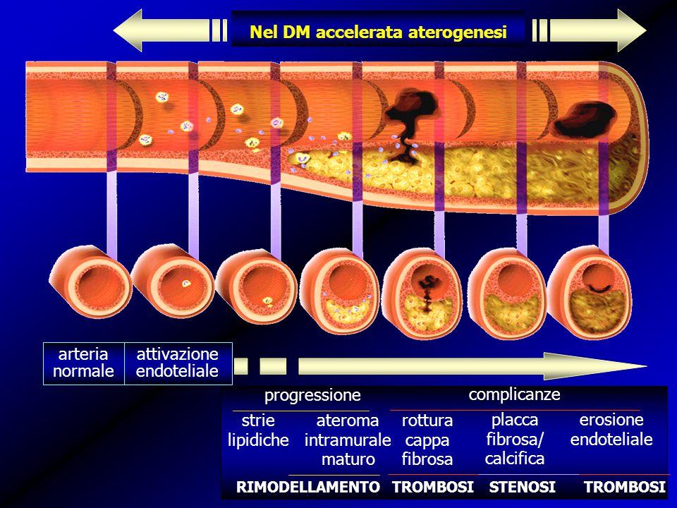 Nel DM accelerata aterogenesi arteria normale attivazione endoteliale progressione strie lipidiche ateroma intramurale maturo complicanze rottura cappa fibrosa placca fibrosa/ calcifica erosione endoteliale STENOSITROMBOSI RIMODELLAMENTO
