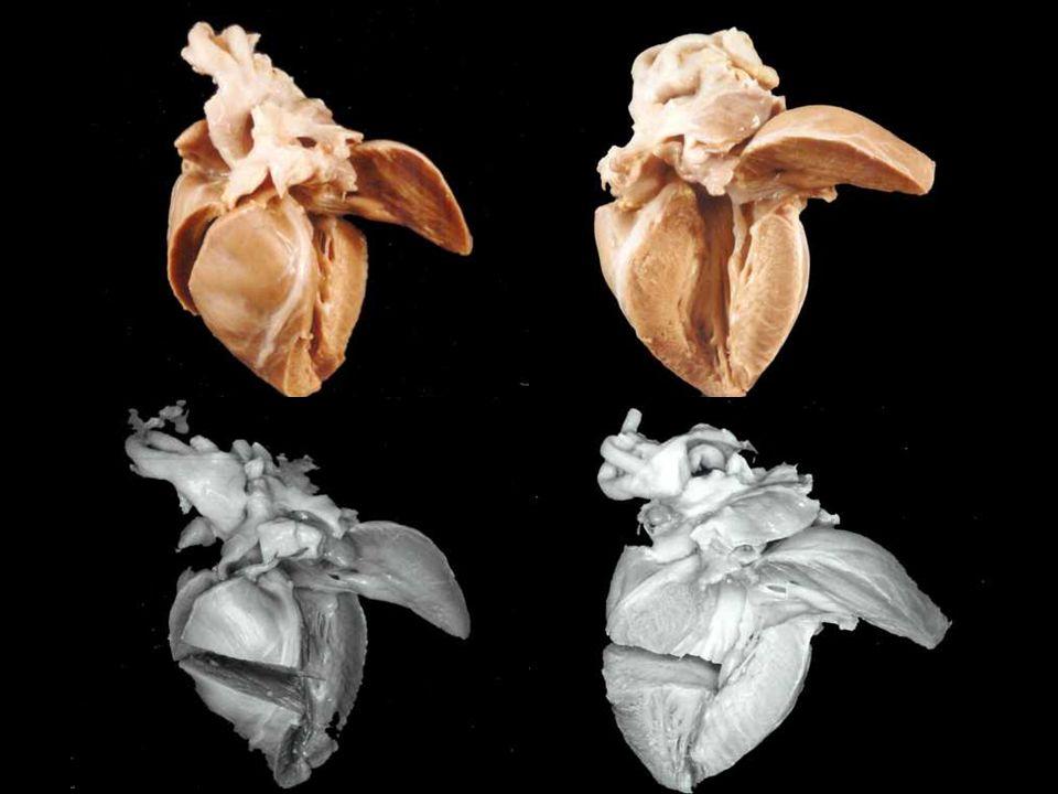 A.Ventricolo sn. Parete anteriore (i) e posteriore (ii).