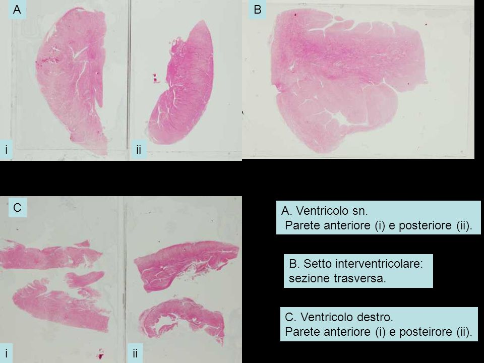 A. Ventricolo sn. Parete anteriore (i) e posteriore (ii). B. Setto interventricolare: sezione trasversa. C. Ventricolo destro. Parete anteriore (i) e