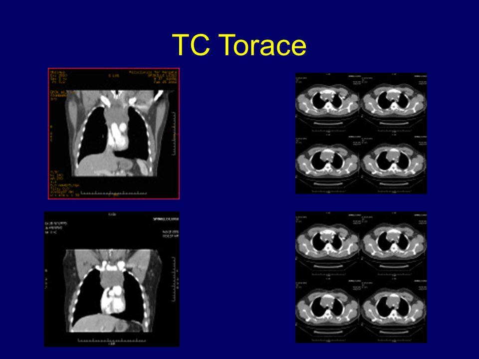 TC Torace