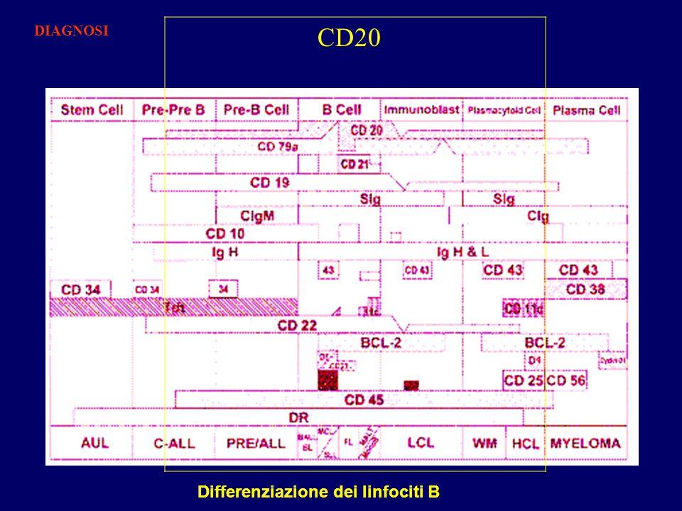 Differenziazione dei linfociti B CD20 DIAGNOSI