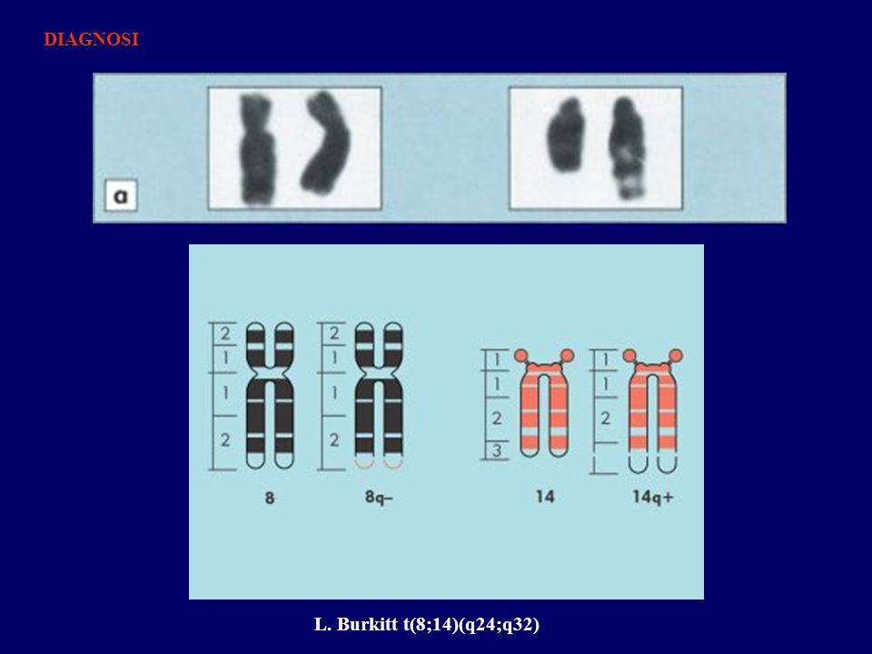 L. Burkitt t(8;14)(q24;q32) DIAGNOSI