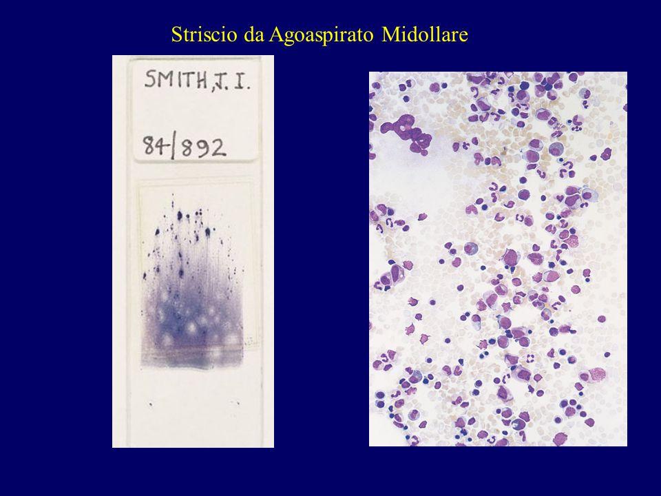 Striscio da Agoaspirato Midollare