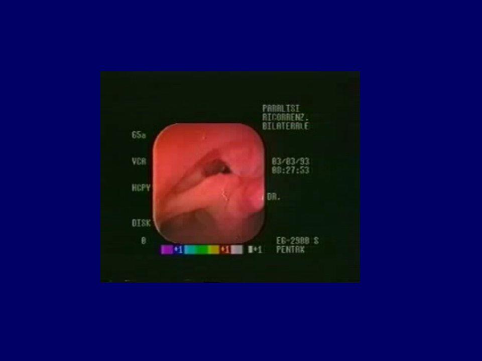 Stenosi laringee Restringimento parziale o circonferenziale del lume aereo endolaringeo, congenito o acquisito.