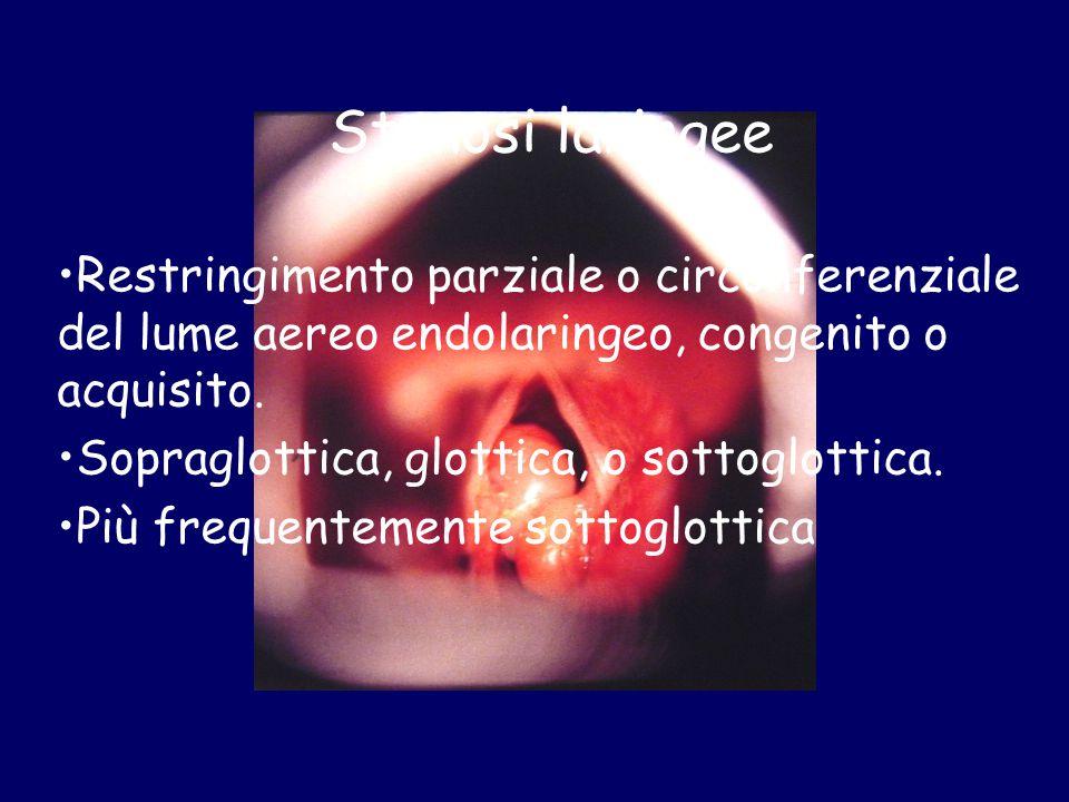 Stenosi laringee Restringimento parziale o circonferenziale del lume aereo endolaringeo, congenito o acquisito. Sopraglottica, glottica, o sottoglotti