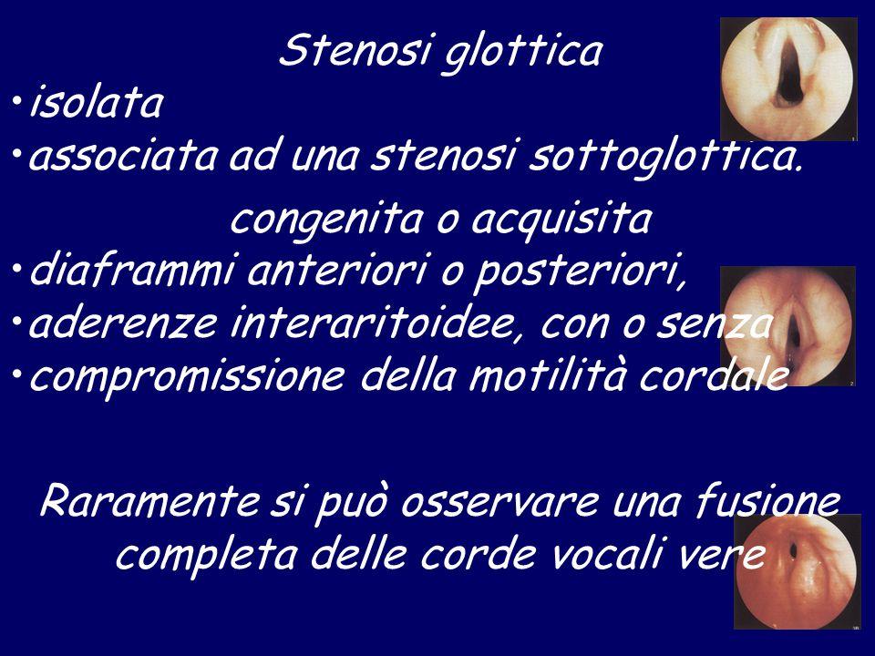 Stenosi glottica isolata associata ad una stenosi sottoglottica. congenita o acquisita diaframmi anteriori o posteriori, aderenze interaritoidee, con