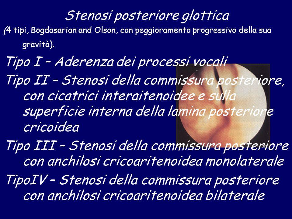 Stenosi posteriore glottica (4 tipi, Bogdasarian and Olson, con peggioramento progressivo della sua gravità). Tipo I – Aderenza dei processi vocali Ti