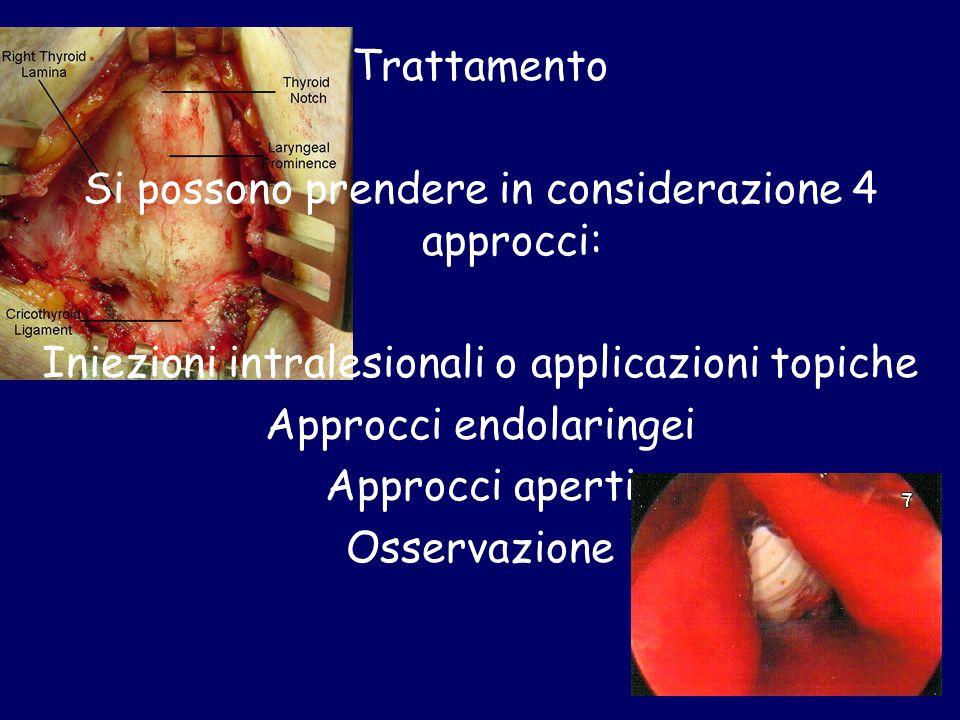 Trattamento Si possono prendere in considerazione 4 approcci: Iniezioni intralesionali o applicazioni topiche Approcci endolaringei Approcci aperti Os