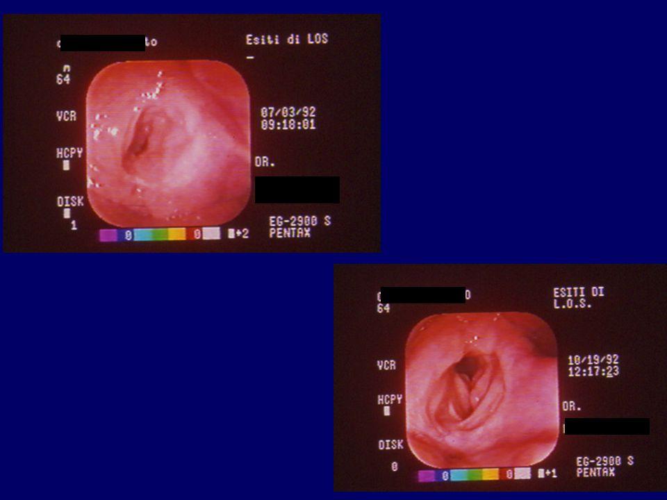 COMPLICAZIONI Ostruzione respiratoria (tappo mucoso) Aspirazione dello stent Ematoma Pneumotorace Altre (recidiva, aspirazione, infezione, estrusione del keel, condrite, granulazione, disfonia, tracheotomia a permanenza)
