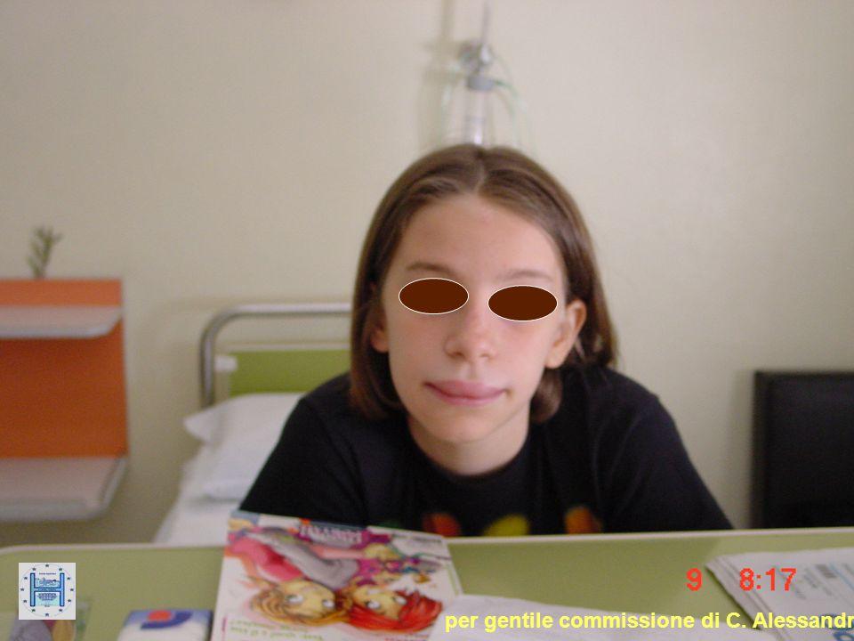 Tumefazioni edematose, fugaci, circoscritte a carico del sottocutaneo e delle mucose.Tumefazioni edematose, fugaci, circoscritte a carico del sottocutaneo e delle mucose.