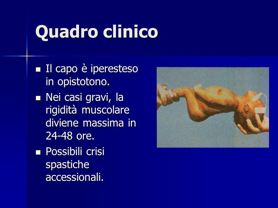 Quadro clinico Il capo è iperesteso in opistotono. Il capo è iperesteso in opistotono. Nei casi gravi, la rigidità muscolare diviene massima in 24-48