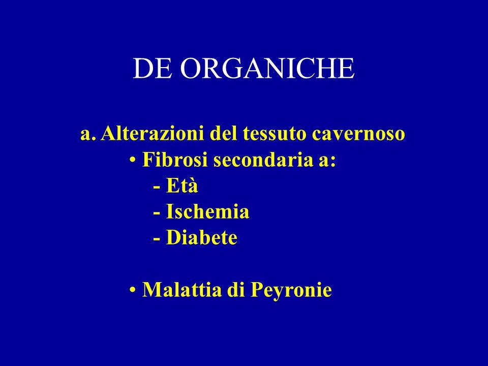 Classificazione delle Disfunzioni Erettili Disfunzione erettile organica Disfunzione erettile psicogena Disfunzione erettile mista