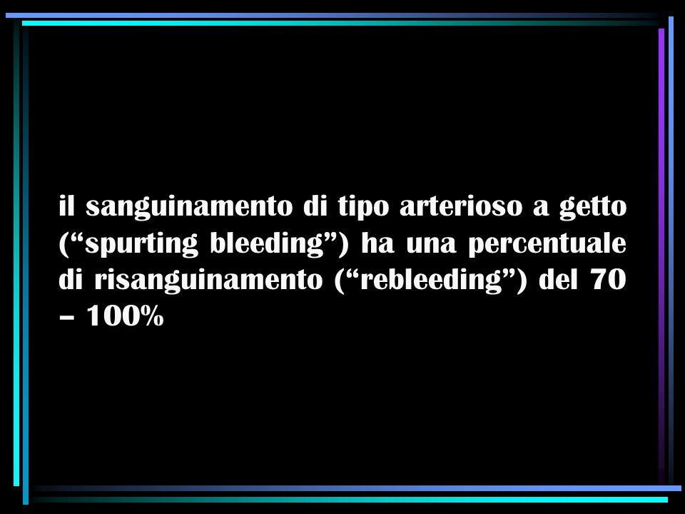 """il sanguinamento di tipo arterioso a getto (""""spurting bleeding"""") ha una percentuale di risanguinamento (""""rebleeding"""") del 70 – 100%"""