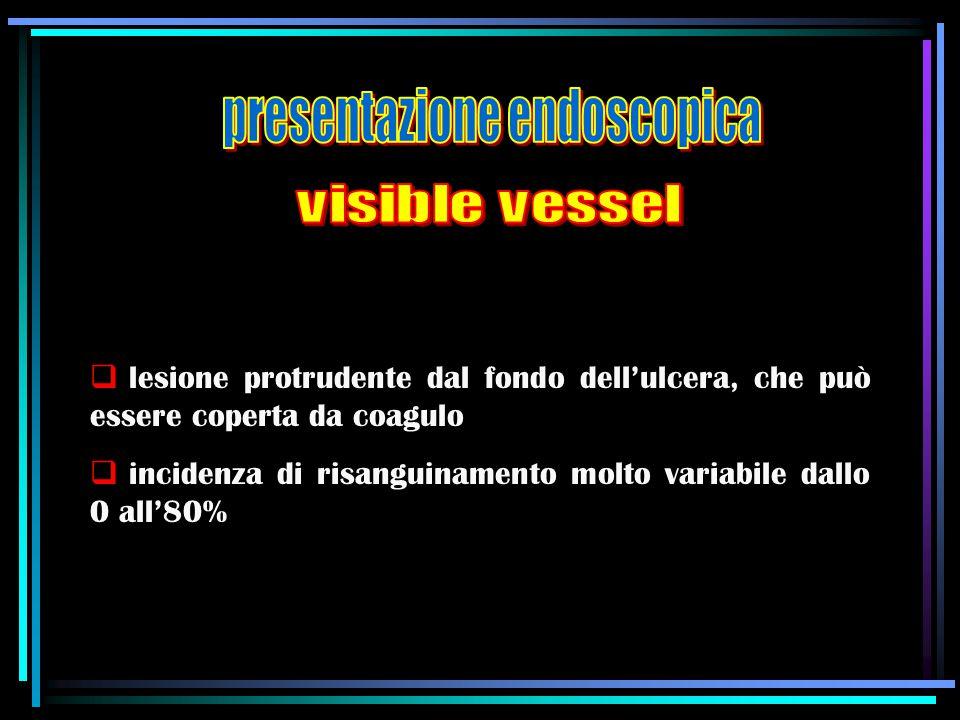  lesione protrudente dal fondo dell'ulcera, che può essere coperta da coagulo  incidenza di risanguinamento molto variabile dallo 0 all'80%