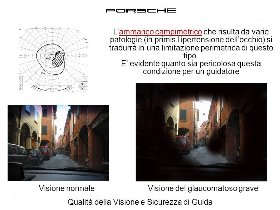 Qualità della Visione e Sicurezza di Guida Visione normale Visione del glaucomatoso grave L'ammanco campimetrico che risulta da varie patologie (in pr