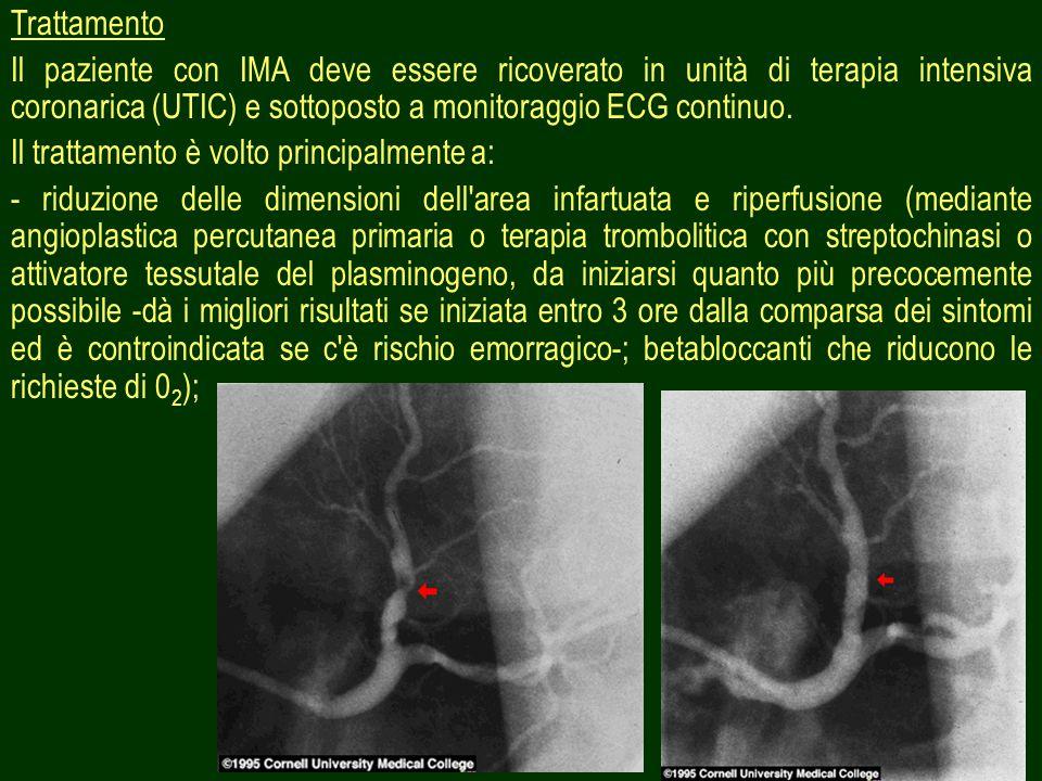 23 Trattamento Il paziente con IMA deve essere ricoverato in unità di terapia intensiva coronarica (UTIC) e sottoposto a monitoraggio ECG continuo. Il