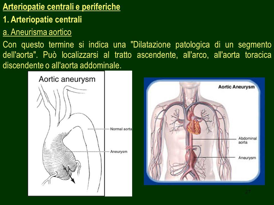 27 Arteriopatie centrali e periferiche 1. Arteriopatie centrali a. Aneurisma aortico Con questo termine si indica una