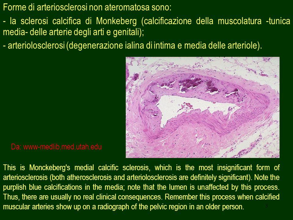 3 Forme di arteriosclerosi non ateromatosa sono: - la sclerosi calcifica di Monkeberg (calcificazione della muscolatura -tunica media- delle arterie d