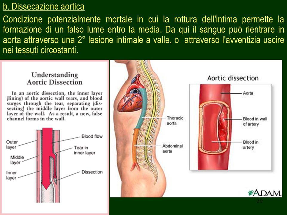 30 b. Dissecazione aortica Condizione potenzialmente mortale in cui la rottura dell'intima permette la formazione di un falso lume entro la media. Da