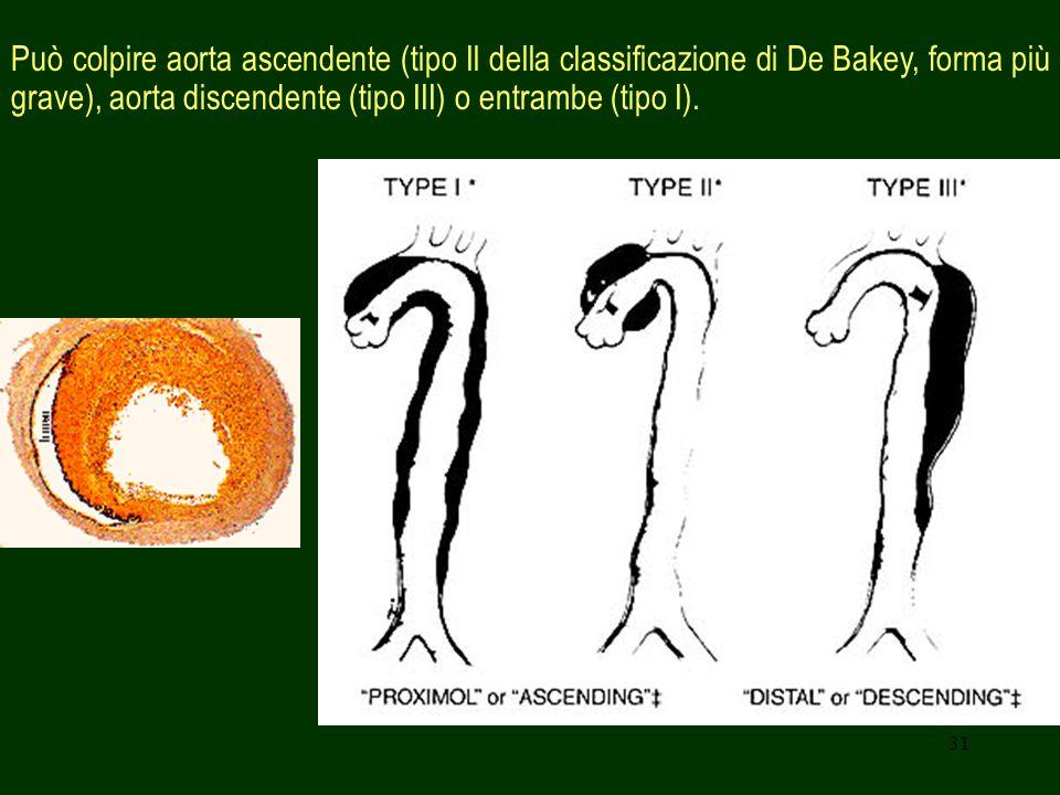 31 Può colpire aorta ascendente (tipo Il della classificazione di De Bakey, forma più grave), aorta discendente (tipo III) o entrambe (tipo I).