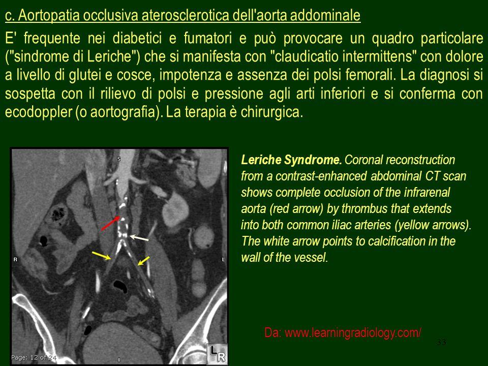33 c. Aortopatia occlusiva aterosclerotica dell'aorta addominale E' frequente nei diabetici e fumatori e può provocare un quadro particolare (