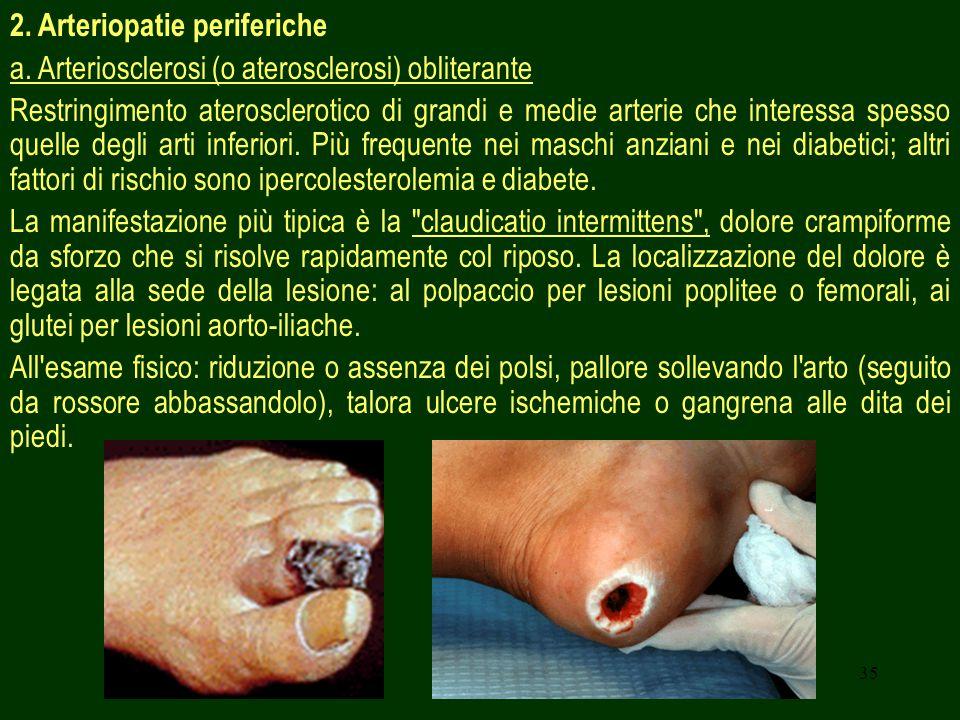35 2. Arteriopatie periferiche a. Arteriosclerosi (o aterosclerosi) obliterante Restringimento aterosclerotico di grandi e medie arterie che interessa