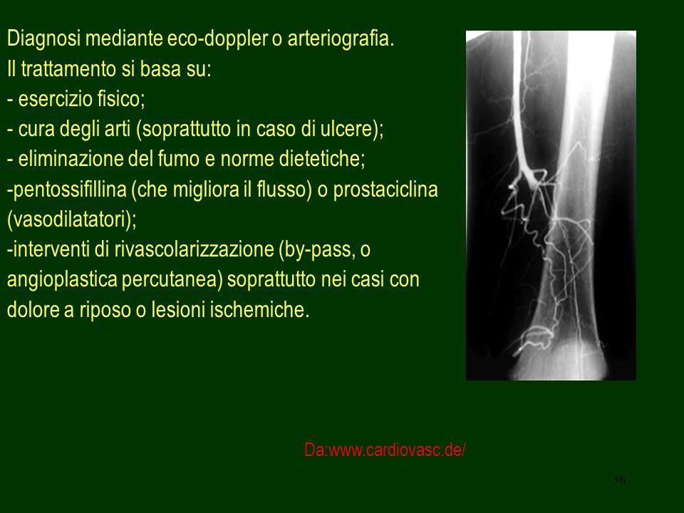 36 Diagnosi mediante eco-doppler o arteriografia. Il trattamento si basa su: - esercizio fisico; - cura degli arti (soprattutto in caso di ulcere); -
