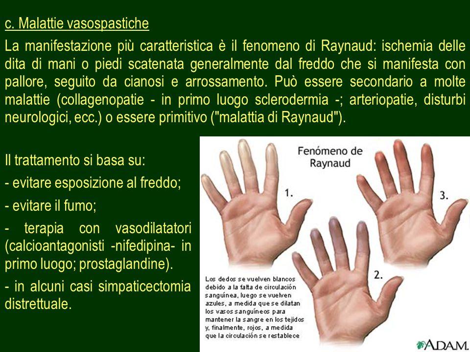 38 c. Malattie vasospastiche La manifestazione più caratteristica è il fenomeno di Raynaud: ischemia delle dita di mani o piedi scatenata generalmente