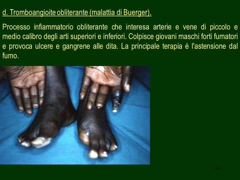 39 d. Tromboangioite obliterante (malattia di Buerger). Processo infiammatorio obliterante che interesa arterie e vene di piccolo e medio calibro degl