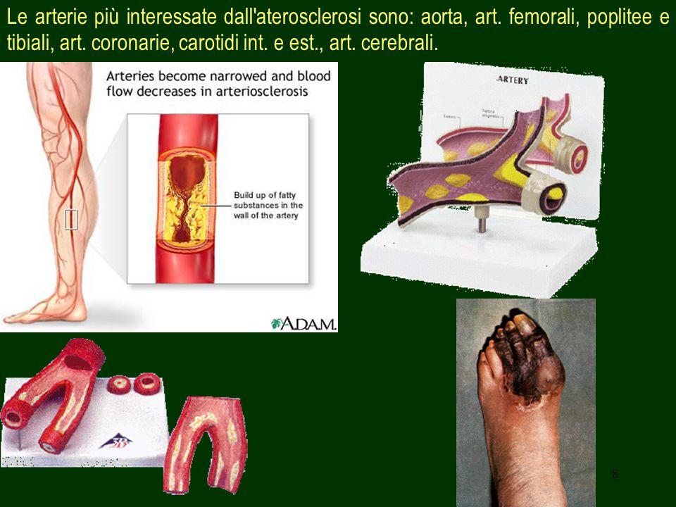 8 Le arterie più interessate dall'aterosclerosi sono: aorta, art. femorali, poplitee e tibiali, art. coronarie, carotidi int. e est., art. cerebrali.