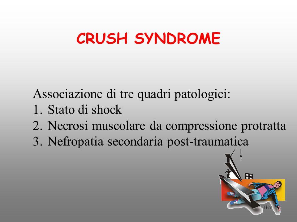 167 CRUSH SYNDROME Associazione di tre quadri patologici: 1.Stato di shock 2.Necrosi muscolare da compressione protratta 3.Nefropatia secondaria post-