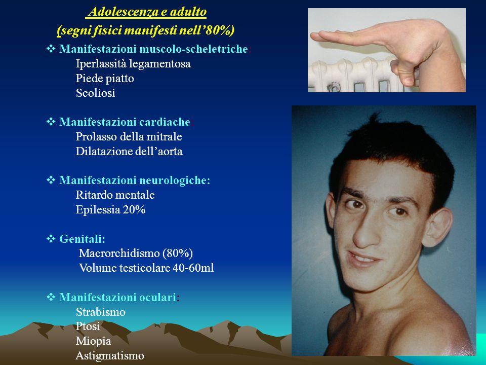 Adolescenza e adulto (segni fisici manifesti nell'80%)  Manifestazioni muscolo-scheletriche: Iperlassità legamentosa Piede piatto Scoliosi  Manifest