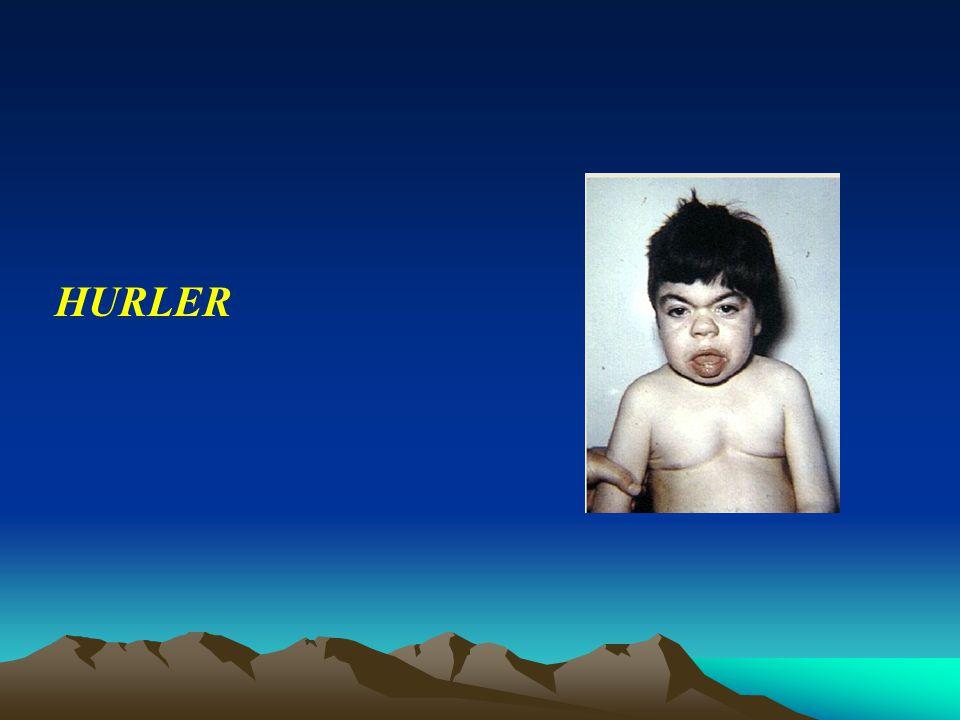 HURLER